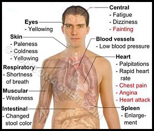Symptoms of Anaemia