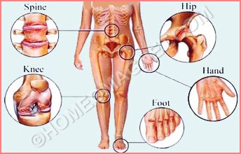 Affected Parts of Arthritis