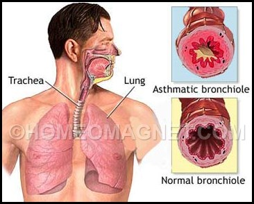 Normal & Asthmatic Lung