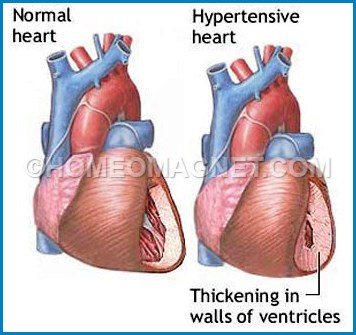 Hypertensive changes of Heart