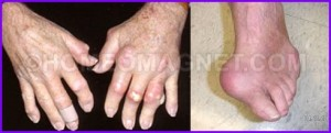 Gout due to Uric Acid