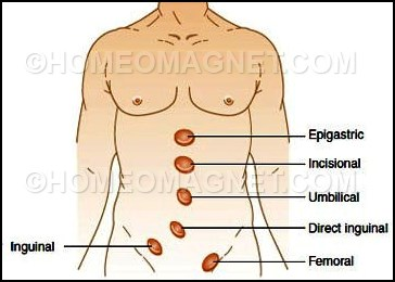 Locations of Hernia