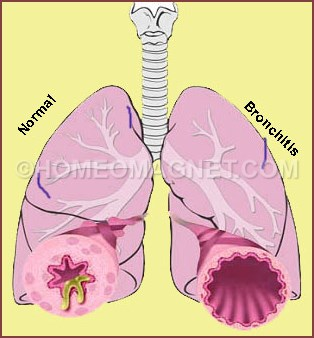 Normal and  Bronchitis Lung